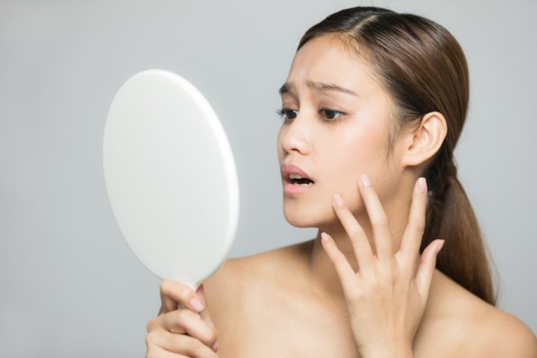 Woman having breakouts
